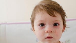 Çocuklardaki cilt döküntülerine dikkat edin Ciddi olabilir