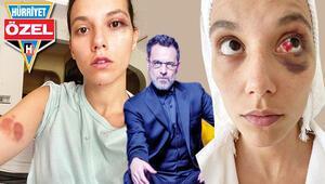 Son dakika haberi: Ozan Güven beni böyle dövdü... İşte Türkiyenin konuştuğu vahşetin portresi