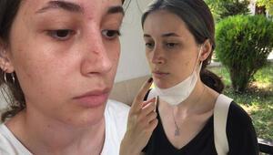 Şort giydiği için darp edildiğini iddia eden ODTÜlü Beril: Çığlık atarak kurtuldum
