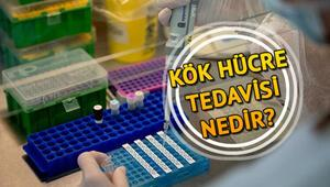 Kök hücre nedir Kök hücre tedavisiyle ilgili bilgiler