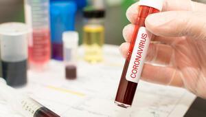 TÜBİTAK grubunda aşı çalışması yapan üniversitelerden biriyiz