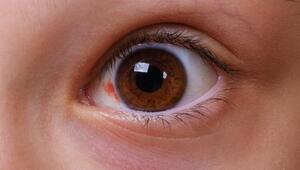 Kırmızı göz hastalığı nedir, bulaşıcı mı, belirtileri neler Konjonktivit hastalığı ile ilgili bilgiler