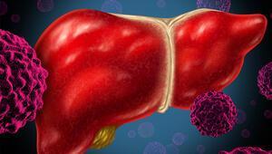 Karaciğerin düşmanı Uzun yıllar hiçbir belirti vermiyor