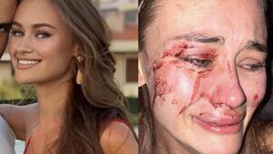 AK Partili Çelikten Daria Kyryliuka yönelik şiddete tepki