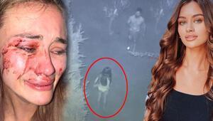 Son dakika haberler... Top model Daria Kyryliuke dayak iddiasında yeni görüntüler ortaya çıktı