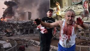 Son dakika haberi: Lübnanın başkenti Beyrutta büyük patlama Onlarca ölü, binlerce yaralı var