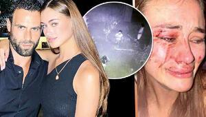 Son dakika haberi: Dariaya saldırıda çifte şüphe Polisler sevgilisini teşhis etti