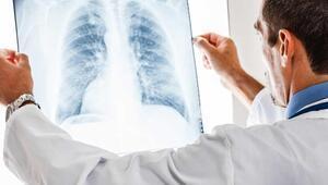 Zatürre nedir İşte zatürre hastalığı ve belirtileri hakkında bilgi