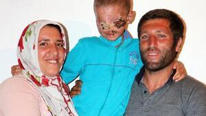 Cilt kanseri Salihin yüzü ilk kez güldü