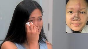 Genç kadın estetik kurbanı: Burnum pişmiş karnabahar gibi eridi