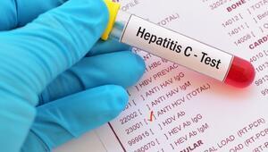 Hepatit C Nedir Belirtileri, Teşhisi ve Tedavisi Nasıldır