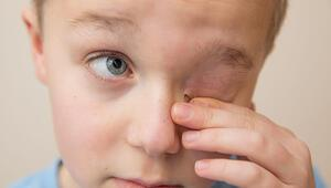 Çocuklardaki bu probleme dikkat Sebebi göz bozukluğu olabilir