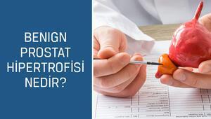 Üroloji Uzmanı Doç. Dr. Mustafa Kıraç cevaplıyor; Benign prostat hipertrofisi nedir, belirtileri ve tedavisi nasıldır