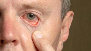 Diyabet hastalığı göz sağlığını nasıl etkiler