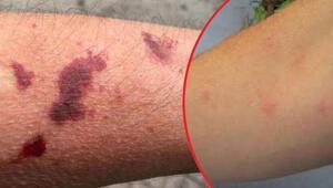 Sapancada büyük panik Asya kaplan sivrisineği yine ortaya çıktı