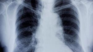 Astım bronşit nedir Astım bronşit belirtileri