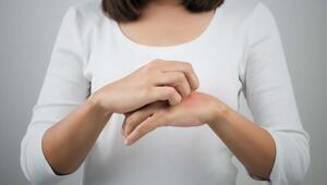 Egzama, alerjik hastalıkların habercisi olabilir
