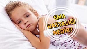 SMA nedir, belirtileri nelerdir Spinal Müsküler Atrofi Tip-1 tedavisiyle ilgili bilgiler