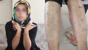 Bir güzellik merkezi skandalı daha Genç kadının vücudu yandı…