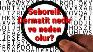 Seboreik Dermatit nedir ve neden olur Seboreik Dermatit belirtileri ve tedavisi