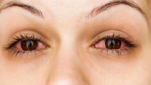 Çok sık görülmüyor diyerek uyardı: 'Kırmızı göz' belirtisi