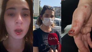 Son dakika haberler: Maltepede amca saldırısı iddiası: sosyal medyada yardım istedi