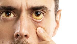 Sarılık ile Mücadelede ERCP Tedavisi