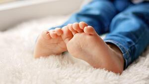 Doğuştan ya da gelişimsel olarak ortaya çıkabiliyor Peki nasıl tedavi edilir