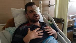 Saldırıya uğrayan avukat gözünü kaybetti Bıçağı gözüme soktu, dünyam karardı