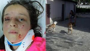 Tuğbanın saldırıya uğradığı mahallede pitbull korkusu sürüyor