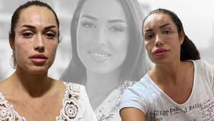 Gençlik aşısı nedeniyle hastanelik olduğunu iddia eden kadın: Amacım sadece yüzümü nemlendirmekti