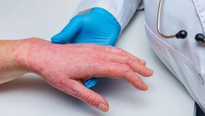 Kronik Ama Bulaşıcı Değil: Sedef Hastalığı (Psoriasis)