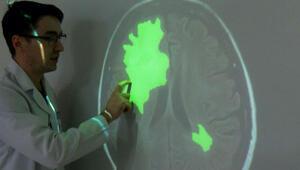 Yapay zeka ile beyin tümörü 5-10 saniyede tespit ediliyor