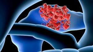 Pankreans Kanserinin Radyasyon Tedavisinde 5 Yeni Gelişme