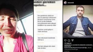 Son dakika... Boşandığı eşinden şiddet gören Sibel, sosyal medyadan yardım istedi