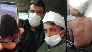 10 yaşındaki çocuğa dehşeti yaşattılar Kafası yarıldı...