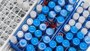 Koronavirüs genetik kodunda gizlenmiş bir gen keşfedildi