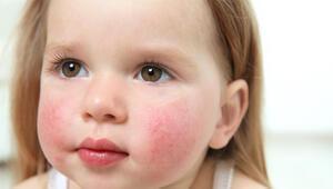 Besin alerjisi olan çocuklar için okullarda alınabilecek önlemler nelerdir
