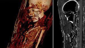 Bilgisayarlı tomografi Mısır'daki mumyaların sırlarını ortaya çıkardı