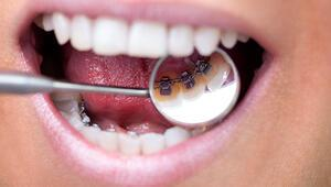 Ortodontide saklı tel tedavisi nedir