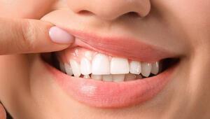 Diş eti problemleri şeker hastalığının belirtisi olabilir