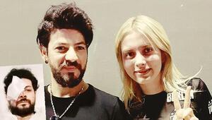 Son dakika: Maganda kâbusu: Genç müzisyen Şahan Dinç gözünü kaybetti...