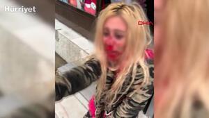 Gaziosmanpaşada kadına kafa atarak kanlar içinde bıraktı