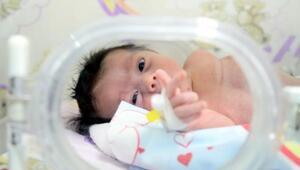 Son dakika... Muammer bebek tüm organları ters doğdu