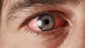 Adenovirüs nedir, belirtileri neler