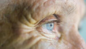 Körlüğe giden yol: Sarı nokta hastalığı