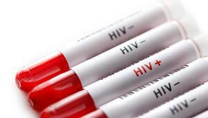 AIDS hayatımızın içinde... Korunmak için neler yapılabilir
