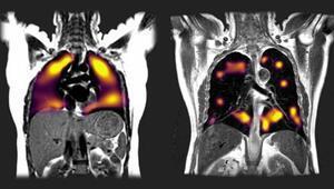 Koronavirüs salgının akciğerlerde yol açtığı tahribat böyle görüntülendi