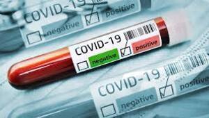 Covid 19 testi kaç günde çıkar Covid 19 test sonucu öğrenme ekranı