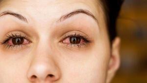 Göz kuruluğu yaşayanlar için önemli uyarı Koronavirüs riski oluşturabilir